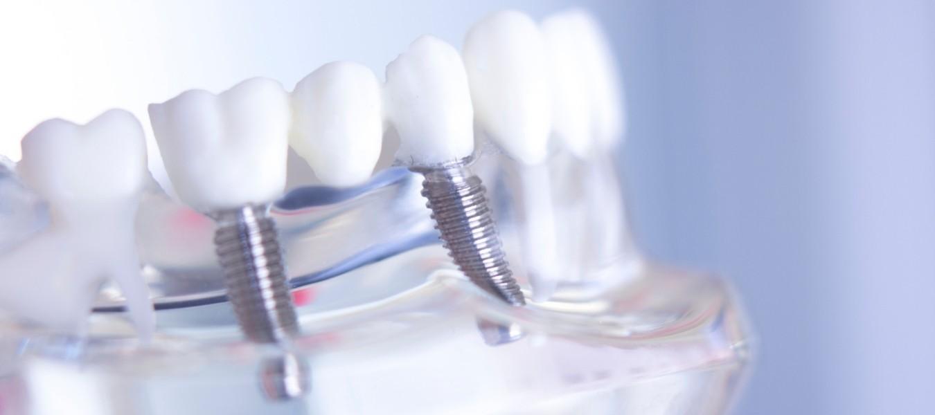 שתלים בשיניים. כך תנהגו לאחר השתלה